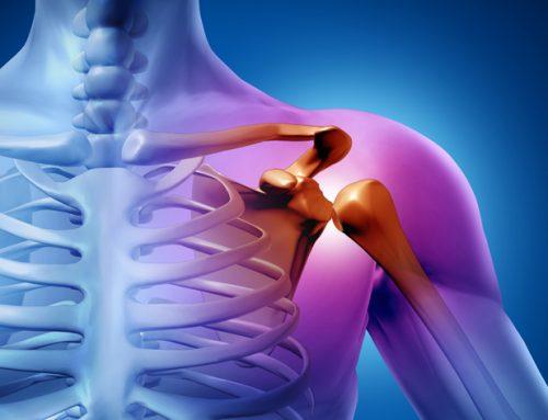 Akupunktur bei Schulterschmerzen