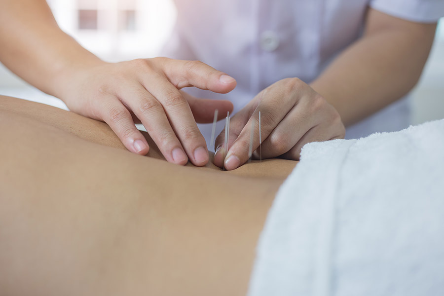 Akupunktur bei Kiefergelenksstörungen